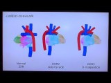 3D modeling system for easily displaying complex congenital heart conditions #DigInfo